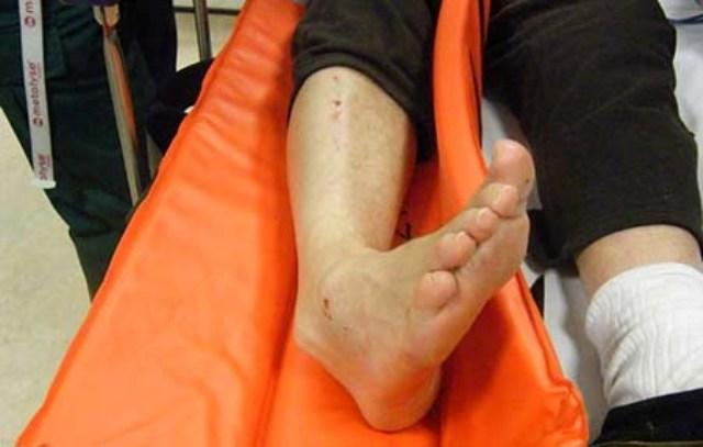 اقدامات لازم برای در رفتگی مچ پا