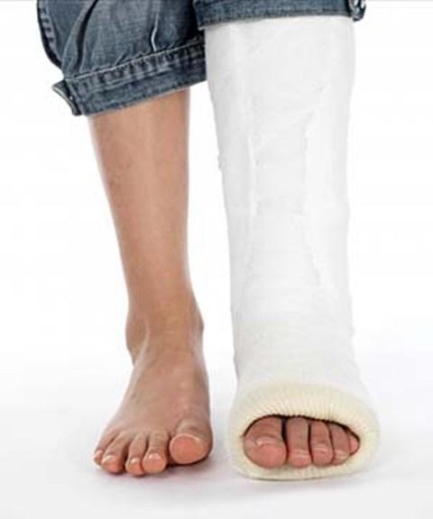 درمان شکستگی و در رفتگی مچ پا